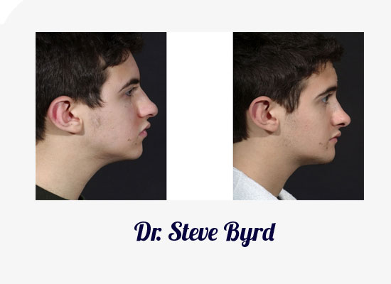 Dallas Rhinoplasty