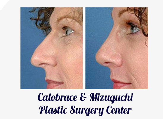 Louisville Rhinoplasty