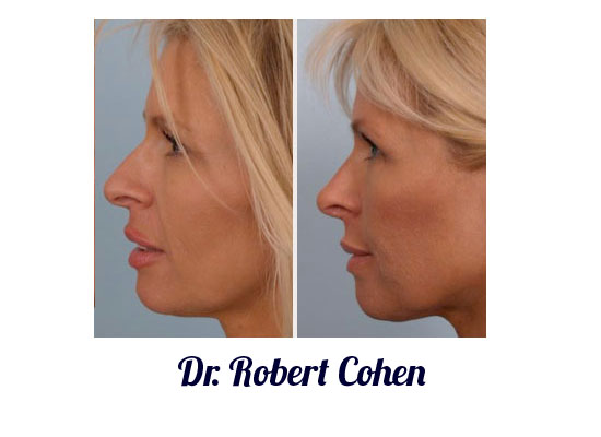 Paradise Valley Rhinoplasty