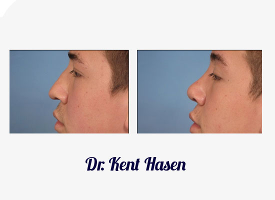 Naples Rhinoplasty