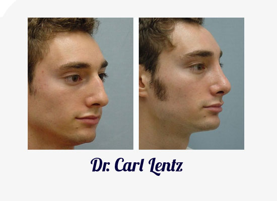 Daytona Beach Rhinoplasty