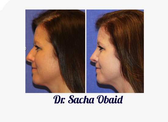 South Lake Rhinoplasty