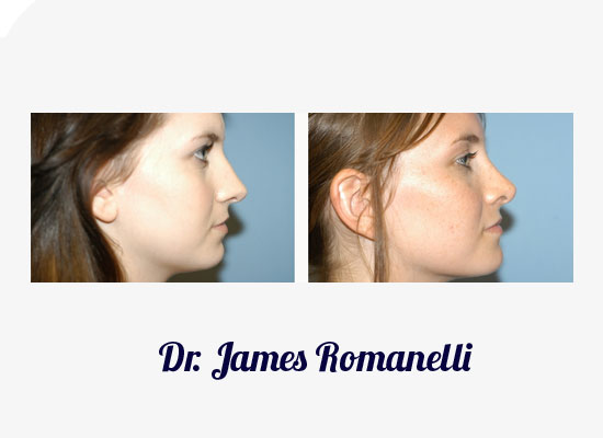 Huntington Rhinoplasty