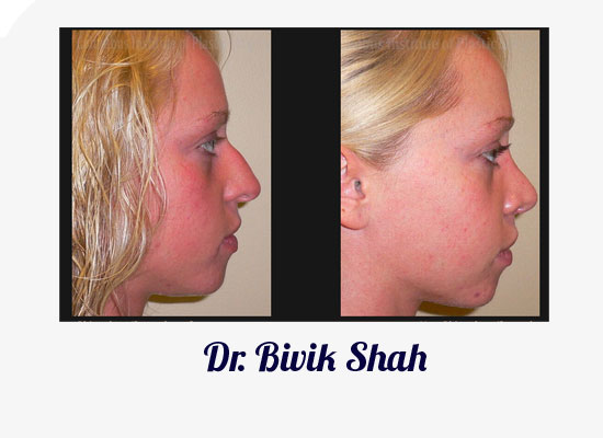 Columbus Rhinoplasty