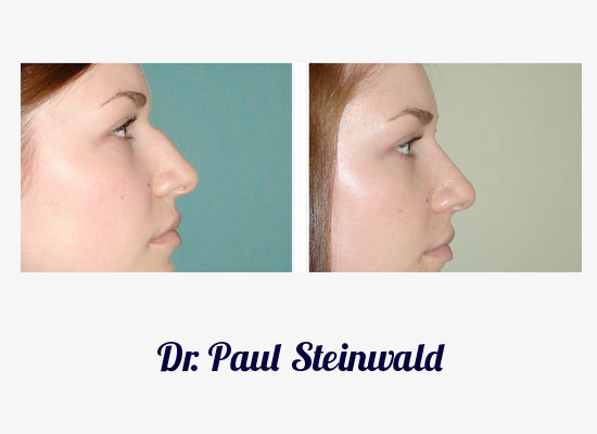 Denver Rhinoplasty
