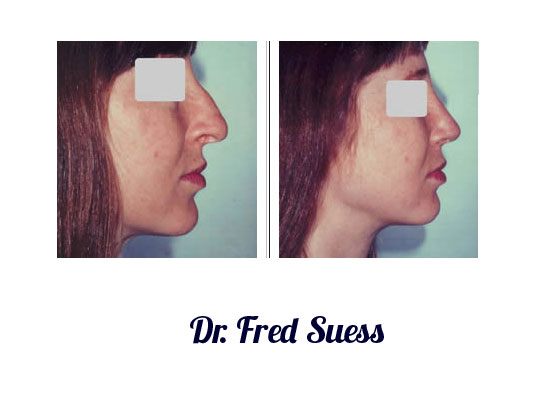 San Francisco Rhinoplasty