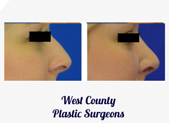 St. Louis Rhinoplasty